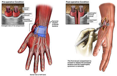 First Dorsal Compartment of Wrist Tendon Release
