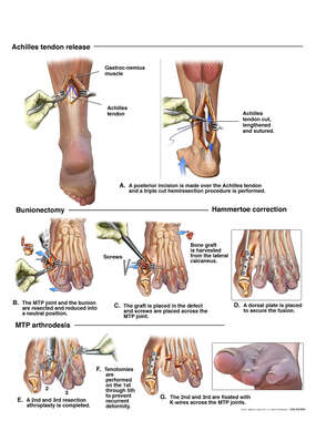 Left Foot and Ankle Repairs