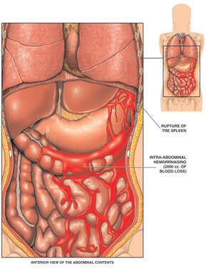 Female Torso with Abdominal Organs and Hemorrhagic Bleeding
