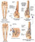 Post-accident Left Femoral Fractures with Surgical Repairs