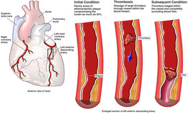 Acute Coronary Thrombosis