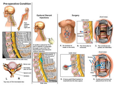 Cervical Disc Injuries with Pain Management Procedures and Scheduled DIscectomy/Fusion Surgery