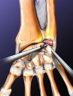 Arthroscopy on the Wrist