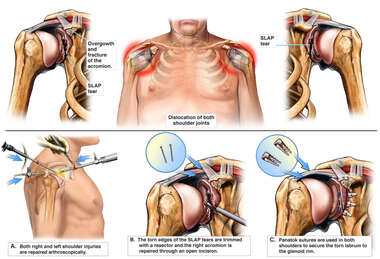 Bilateral Shoulder Injuries with Arthroscopic Repairs