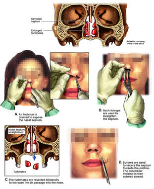 Nasal Abnormalities with Surgical Septoplasty and Bilateral Turbinate Excisions