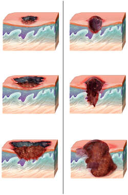 Superficial Spreading Melanoma vs. Nodular Melanoma
