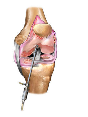 Chondroplasty of the Knee