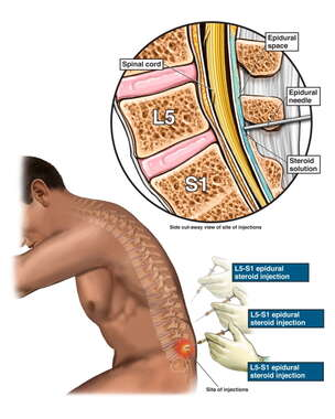 Multiple Lumbar Epidural Injections