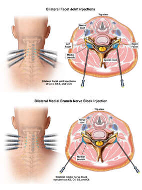 Cervical Spine Injections