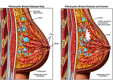 Fibrocystic Breast Disease With and Without the Presence of Breast Cancer