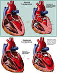 Reduction in Ejection Fraction