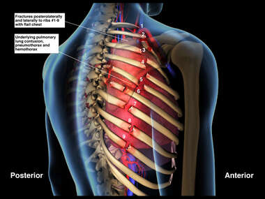 Post Accident Right Rib Fractures and Lung Injuries