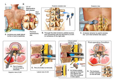 L3-4 Intertransverse Lumbar Interbody Fusion Procedure