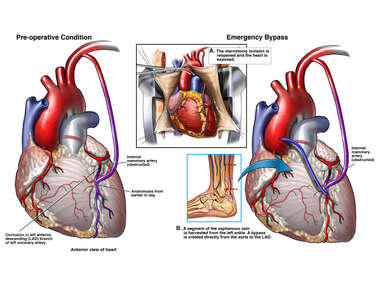 Post-operative Graft Stenosis with Emergency Coronary Bypass