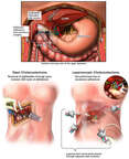 Gallbladder Removal Surgery - Open and Laparoscopic Cholecystectomy