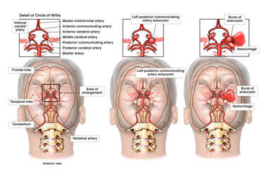 Rupture of Cerebral Artery Aneurysm