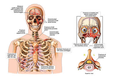 Male Skeletal Torso with Brain Injury, Sternum, Rib and Cervical Spine Fractures