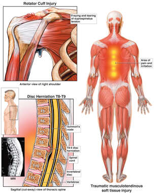 Posterior Male Muscular Anatomy with Mid-back Spinal Fracture and Right Shoulder Injury