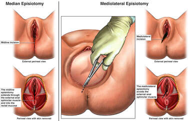 Median Episiotomy vs. Mediolateral Episiotomy