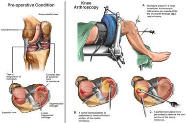 Knee Arthroscopic Surgery