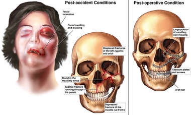 Post-accident Facial Injuries with Surgical Fixation
