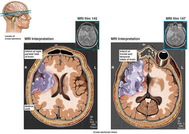MRI Examination of  Brain Injuries