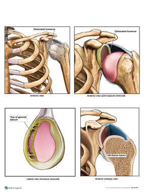 Left Shoulder Sports Injuries