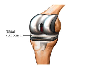 Total Knee Replacement: Step 4