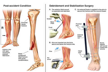 Debridement and Stabilization of Open Tibia Fracture