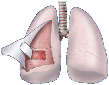 Pleura of the Lungs