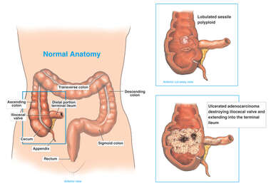 Progression of Colon Cancer