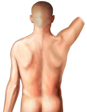 Male Figure - Posterior with Right Arm Raised