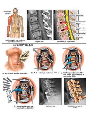 Cervical Spine Injury with Double Level Anterior Discectomy and Fusion Procedure