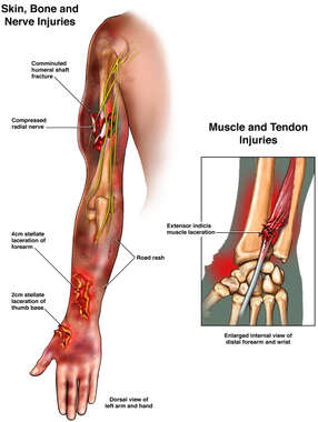 Left Arm Injuries