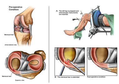 Left Knee Medial Meniscus Tear with Arthroscopic Meniscectomy