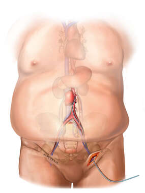 Deployment of Endograft into Abdominal Aorta