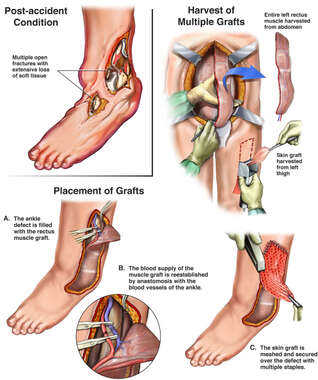 Severe Crush Injuries of the Left Foot and Subsequent Grafting