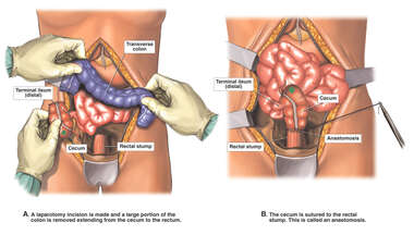 Removal of Most of Colon
