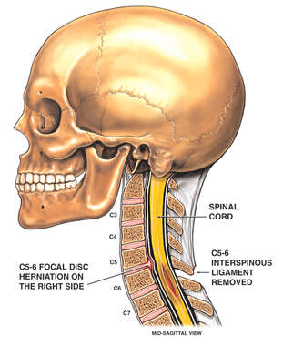 C5-C6 Disc Herniation (Post-surgery)
