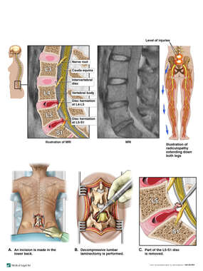 Lumbar Spine Injuries with Surgical Decompression