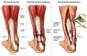Achilles Tendon Reconstruction