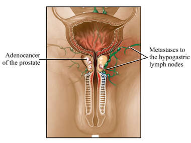 Cancer of the Prostate with Metastasis to Lymph Nodes
