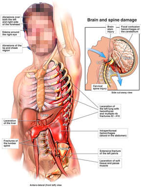 Spinal Cord, Chest and Abdominal Injuries