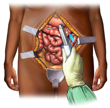 Intestinal Resection