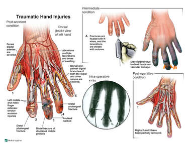 Traumatic Hand Injuries