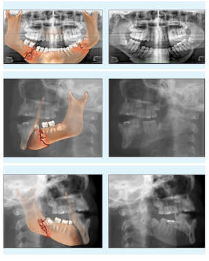 Colorized Films with Post-accident Bilateral Mandible Fractures
