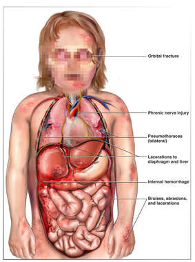Child Torso with Post-accident Injuries ot the Face, Thorax, and Abdomen