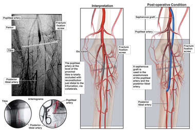 Persistent Vascular Injury with Eventual Surgical Repair