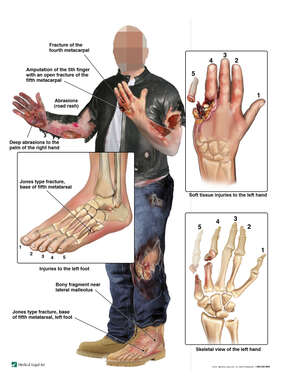 Traumatic  Injuries - Motorcyle Crash