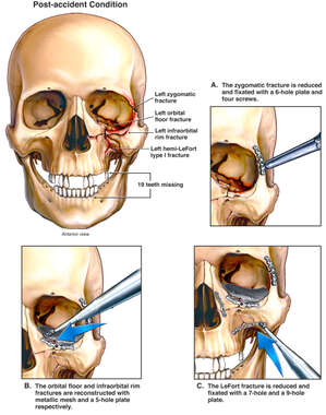 Multiple Left Sided Facial Fractures with Surgical Fixation